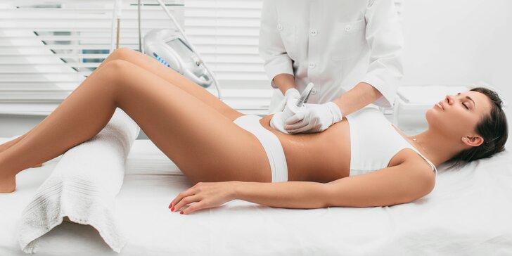 Pasívne metabolické cvičenie s lymfodrenážou či ultrazvukové odstránenie tuku