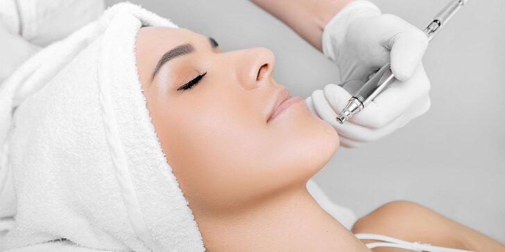 Vyhladenie či úplné odstránenie vrások laserom alebo mezoterapiou