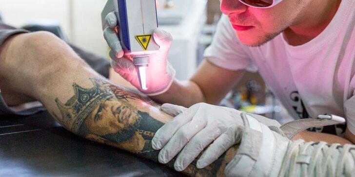 Odstránenie tetovania laserom aj so zľavou 30 % na pretetovanie