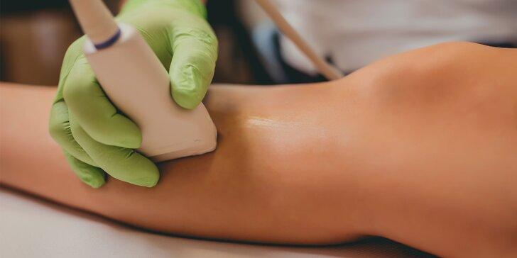 Pre zdravie a krásu nôh: vyšetrenie a odstránenie kŕčových žíl