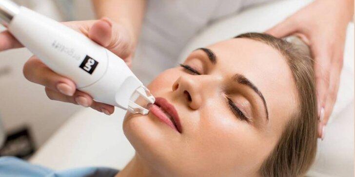 Účinná lipomasáž tváre alebo tela prístrojom LPG Alliance