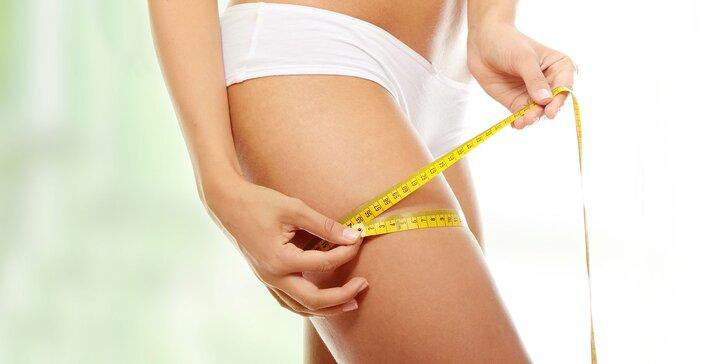 Lokálna lipolýza - odstránenie tuku vo vybranej oblasti tela
