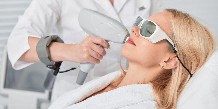 Laserová epilácia nežiadúcich chĺpkov na tele v salóne HairLess