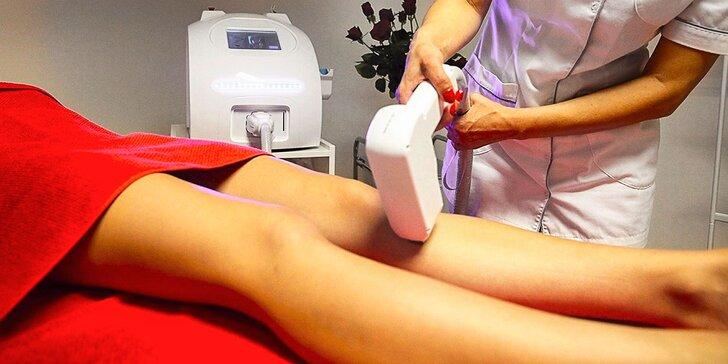 Laserová epilácia pre ženy a mužov