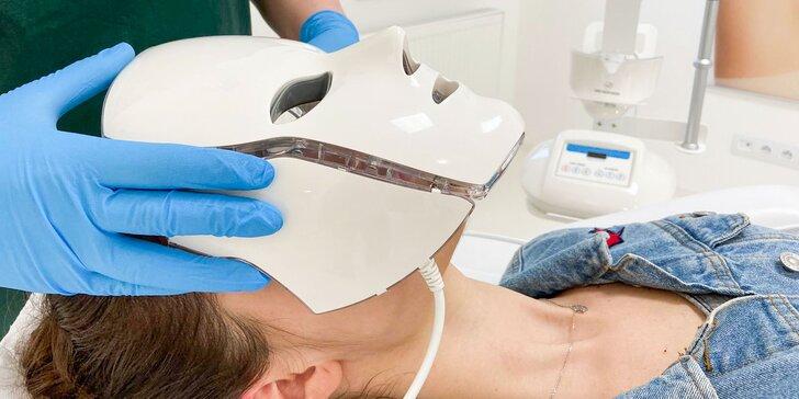 Prevratná liečba akné, pigmentácií a rejuvenizácia pleti fotodynamickým žiarením