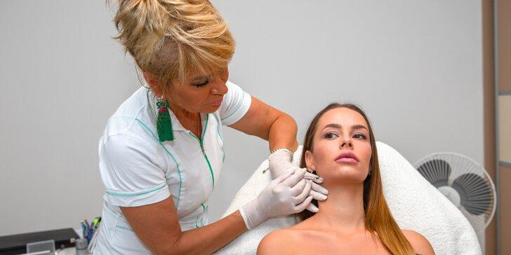Nefertiti lifting: zúženie dolnej sánky pomocou botulotoxínu
