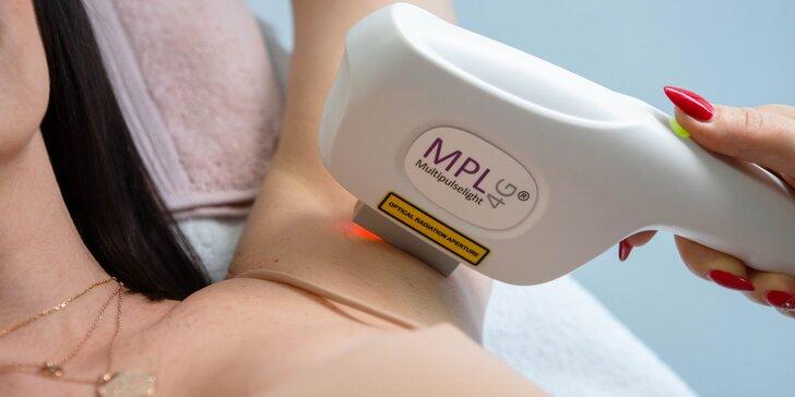 MPL 4G - prevratná novinka na odstránenie chĺpkov, akné a vyhladenie vrások