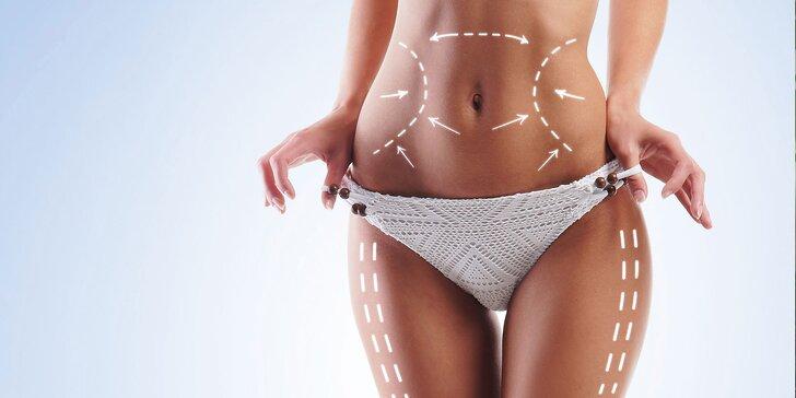 Redukcia tuku a celulitídy: medicínska podtlaková rádiofrekvencia s endomasážou a lipolaserom