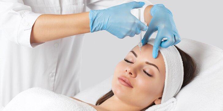 Aplikácia botulotoxínu do vybranej časti tváre certifikovanou lekárkou