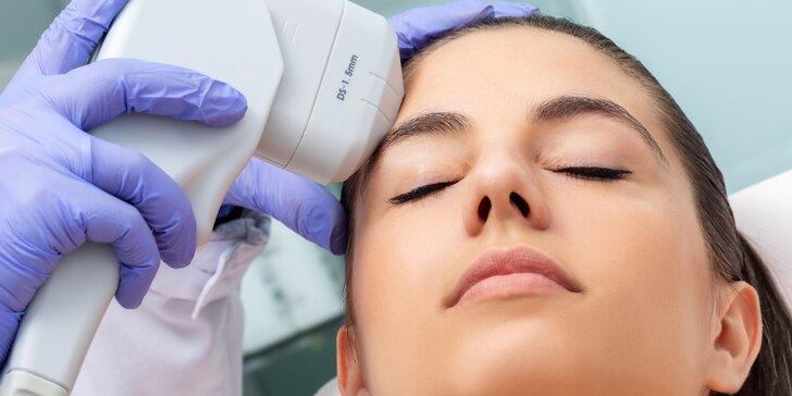 Najmodernejšie liftingové ošetrenie HIFU na vybranú oblasť tváre, krk či dekolt