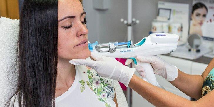 Nechajte sa omladiť unikátnou mezoterapiou v salóne Dermafresh