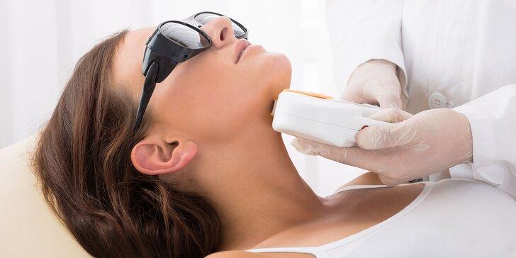 E-light epilácia s rádiofrekvenciou - trvalé odstraňovanie chĺpkov