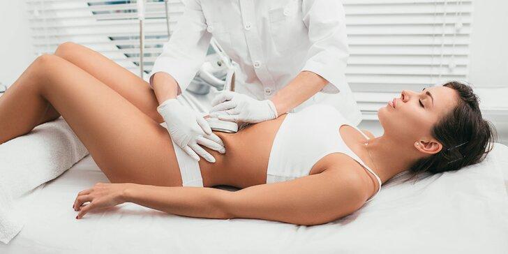 Liposukcia bez skalpela vďaka kavitácii či aromaterapeutickým zábalom