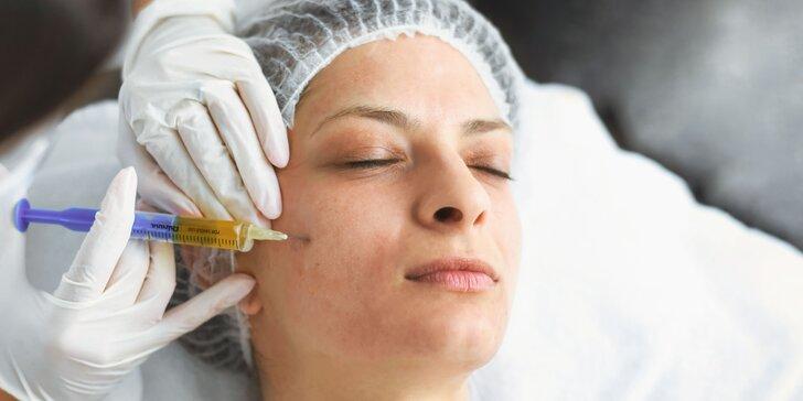 Prevratný plazmalifting: omladnite alebo stopnite vypadávanie vlasov