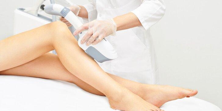 Epilácia vybranej časti tela diódovým epilačným laserom
