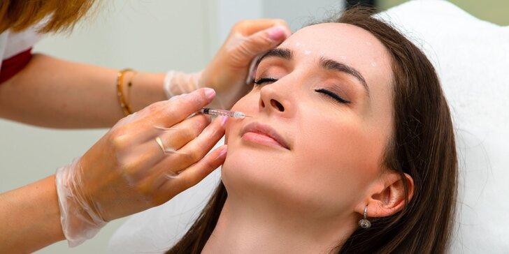 Aplikácia botoxu proti vráskam alebo poteniu v salóne Diva Beauty