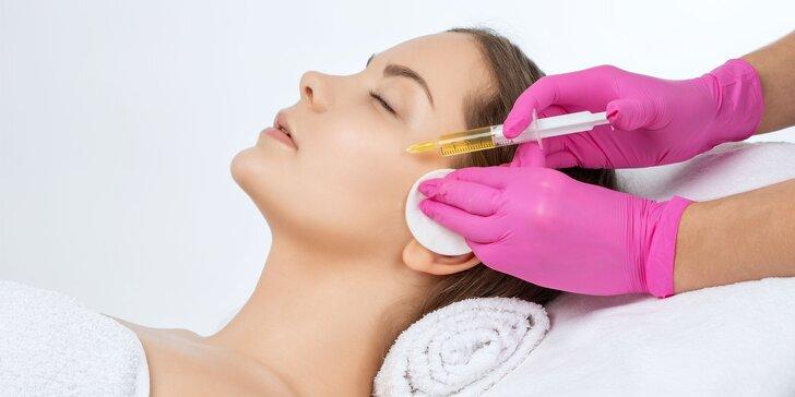 Drakuloterapia plazmalifting na omladenie pleti či proti vypadávaniu vlasov