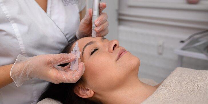Viditeľné a bezbolestné omladenie pokožky tváre i problémových partií s microneedlingom