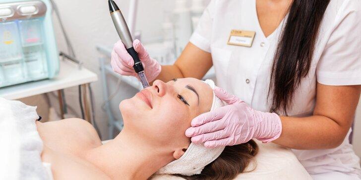 Mezoterapia: Hĺbková hydratácia, vitamínová výživa či okamžitý lifting