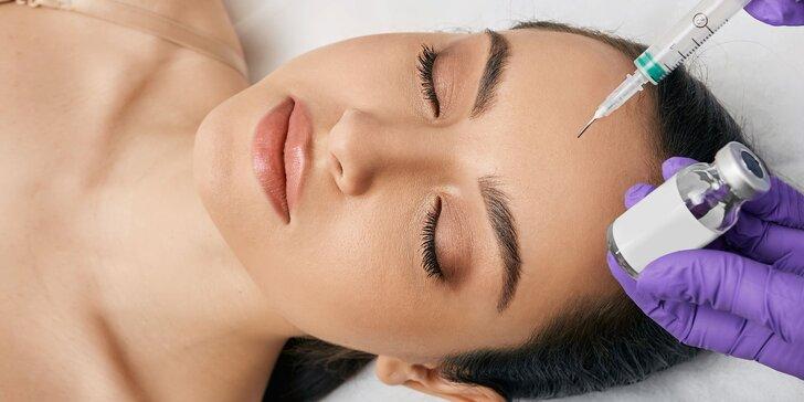 Biorevitalizácia PRX-T®33 - technológia, ktorá remodeluje a revitalizuje vašu dermu