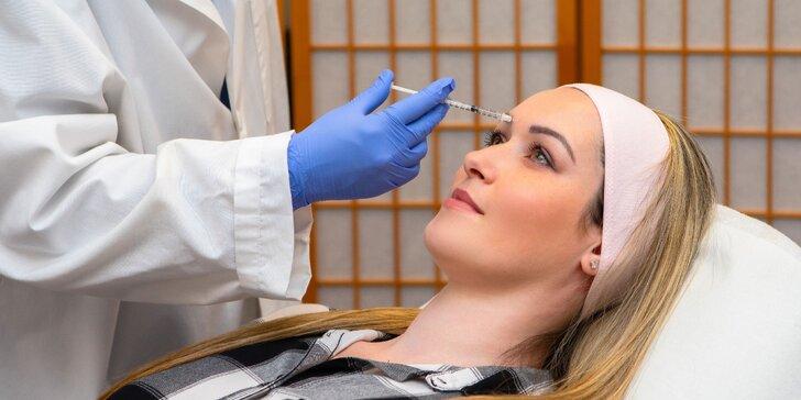 Zbavte sa mimických vrások na tvári vďaka aplikácii botulotoxínu