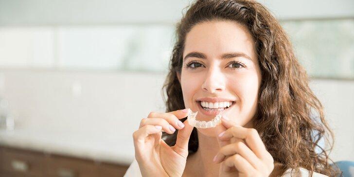 Nehanbite sa za svoj úsmev vďaka neviditeľnému strojčeku na zuby INVIDENT