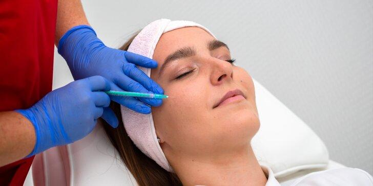 Výplň nosovo-ústnych vrások kyselinou hyalurónovou