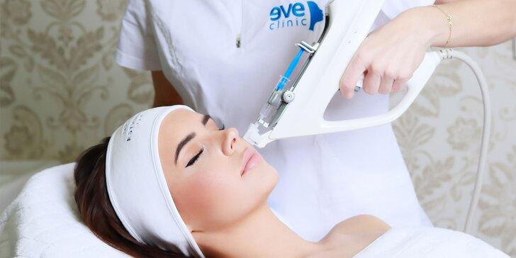 Vyhladenie vrások kmeňovými bunkami – 1 ošetrenie alebo permanentka