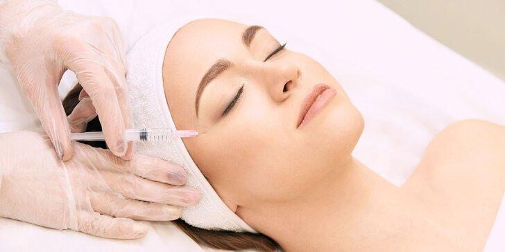 Zbavte sa konečne vrások bezpečnou aplikáciou botoxu do vybranej časti tváre