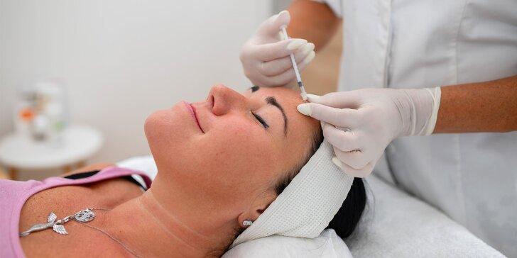 Aplikácia botoxu zn. Dysport do vybranej časti tváre alebo do podpazušia