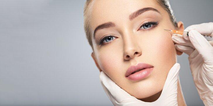 Vyplnenie vrások botoxom na čele, medzi obočím alebo v okolí očí