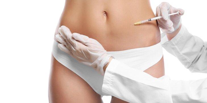 Injekčná lipolýza! Zbavte sa tuku v problémových partiách!