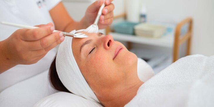 Mezoterapia-Microneedling alebo chemický peeling, v ponuke aj permanentky