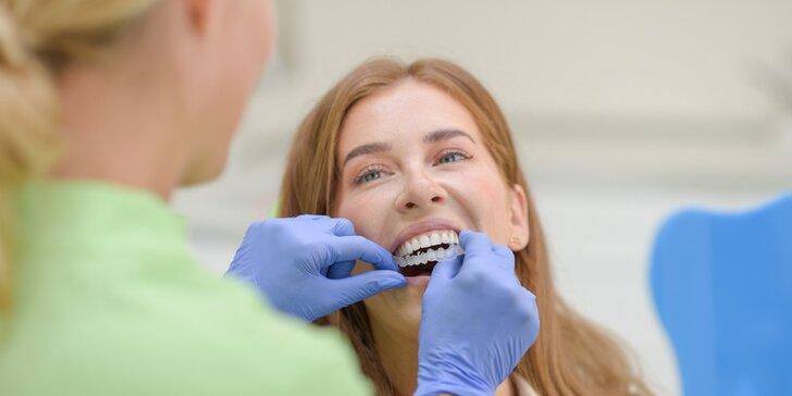Zľava na neviditeľný zubný strojček INVISALIGN + bielenie zubov vo Family Dental Care