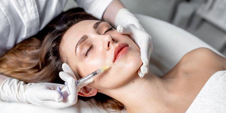 Vyhladenie tváre botoxom: Okolie očí, vráska hnevu, čelo, kútiky či brada