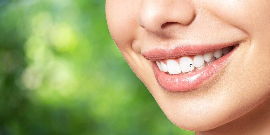 Bielenie zubov či zubný šperk Swarovski