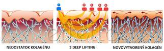 Frakčný biologický lifting tváre